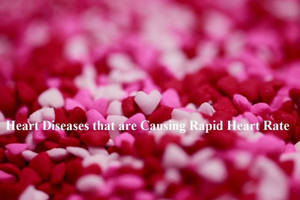 Heart Diseases that are Causing Rapid Heart Rate